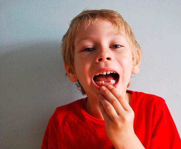 ¿Por qué debemos usar el hilo dental?