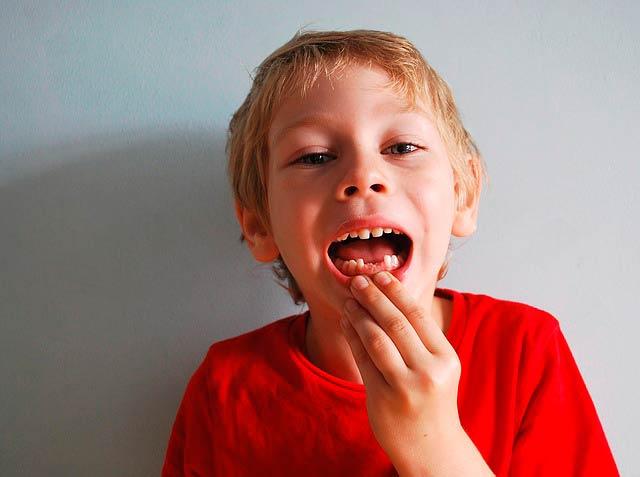 ¿ Qué son los dientes de leche?