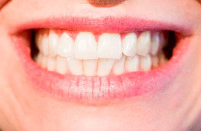 ¿Por qué nuestros dientes no están sujetos?