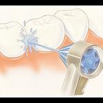 ¿Qué es un irrigador dental?