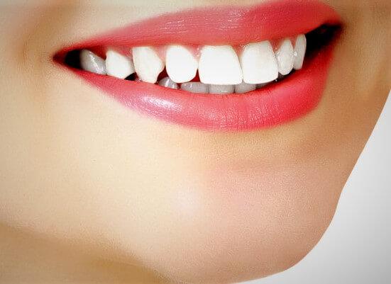 coste de una sonrisa blanca