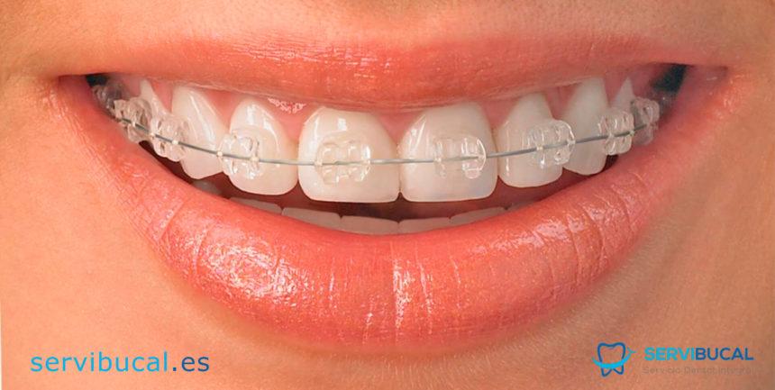 Ortodoncia de cerámica: Todo lo que necesitas saber de los brackets