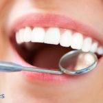 ¿Cuánto cuestan los implantes dentales y qué tipos existen?
