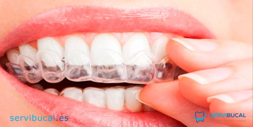 Férulas dentales: Qué son y cuando se usan