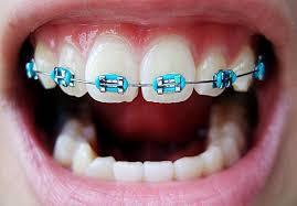 ortodoncia con brackets 2