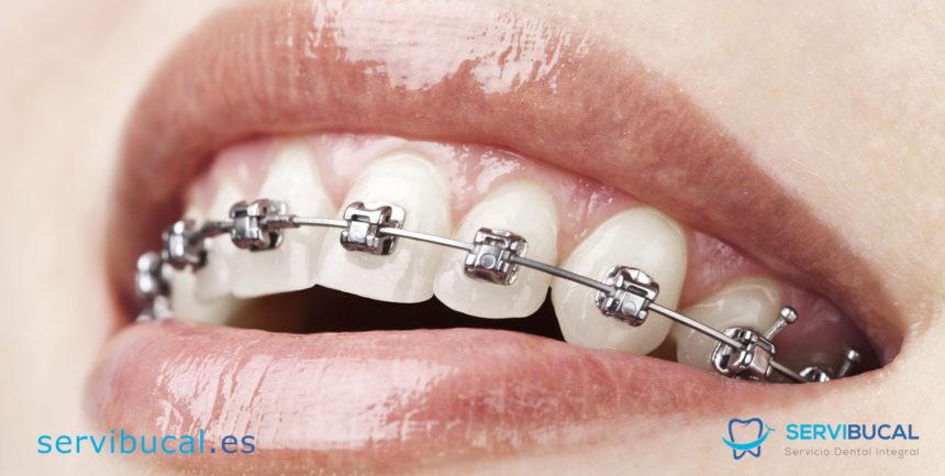 ¿Qué tipos de ortodoncia con brackets existen y para qué se utilizan?