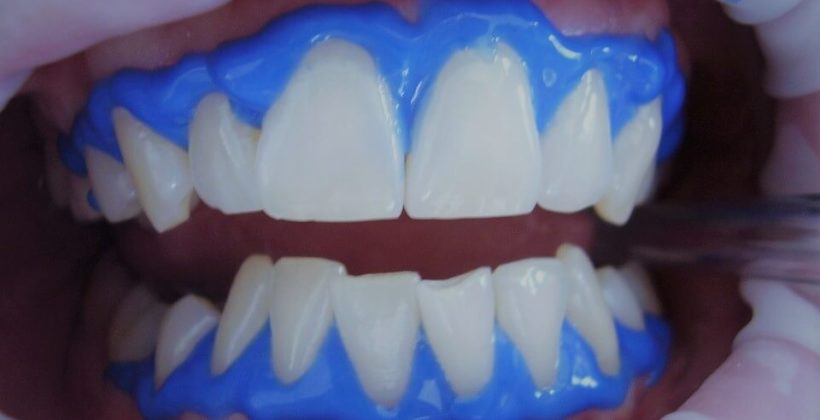 blanqueamiento dental
