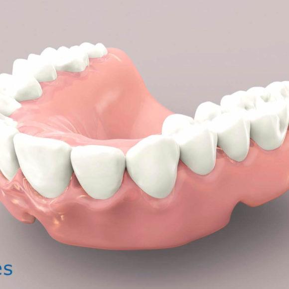 ¿Qué son las prótesis dentales removibles? Tipos y características