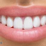 ¿Qué es un seguro dental y por qué no deberías contratar uno?