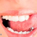 Frenillo lingual corto o anquiloglosia: Qué es y cuando se debe operar