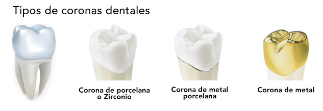 coronas de porcelana