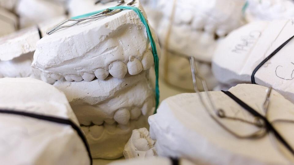 como se coloca una corona dental