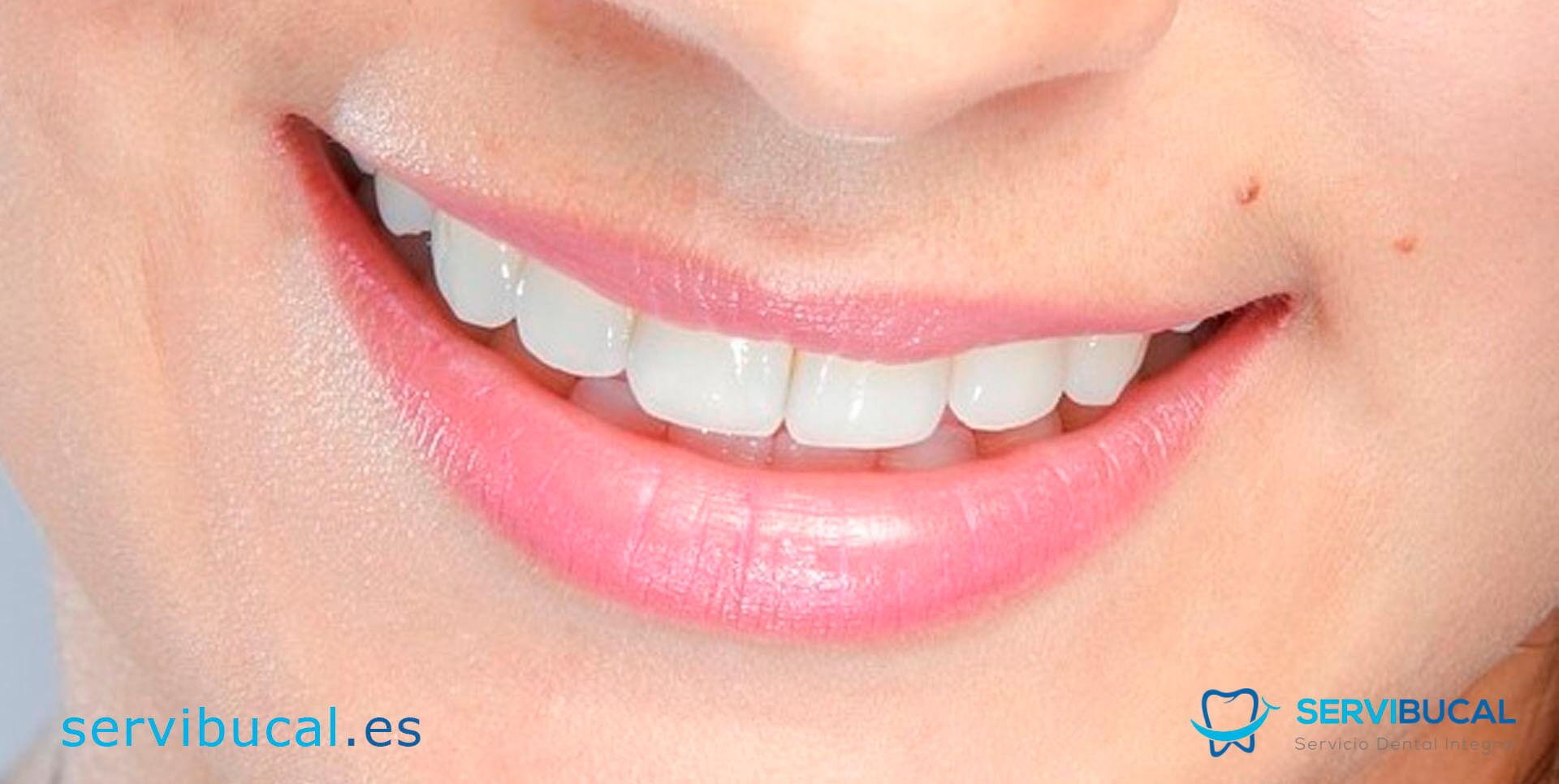 clases de coronas dentales