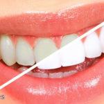¿Qué es la odontología estética y cuáles son los tratamientos más novedosos?