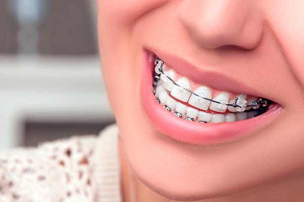 Resultado de imagen de ortodoncia de zafiro