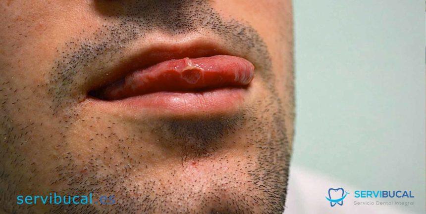 Tipos de infección bucal: Todo sobre las principales lesiones y enfermedades de la boca
