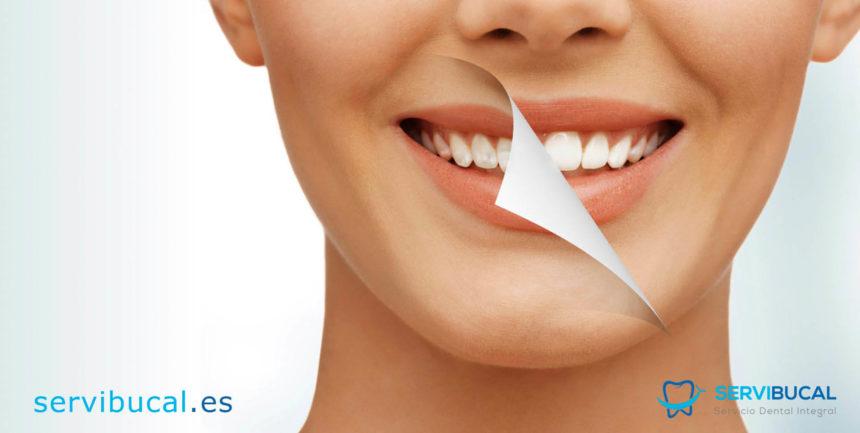 ¿Por qué aparecen manchas en los dientes?, y ¿cómo prevenirlas y eliminarlas?