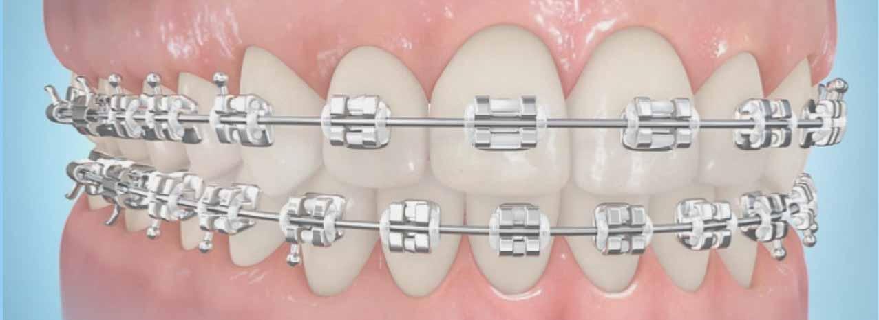 """""""Procedimiento dental de ortodoncia""""的图片搜索结果"""