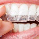 Tipos de retenedores dentales. ¿Qué son y para qué se utilizan?