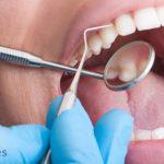 Definición de periodoncia, ¿qué es y en qué consiste?
