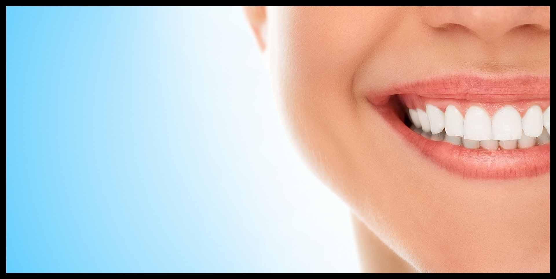una sonrisa envidiable tras la periodoncia