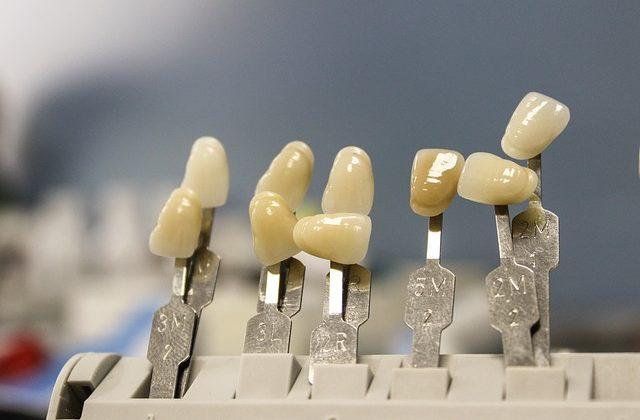arreglar diente