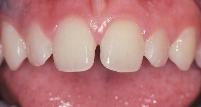 como arreglar dientes separados