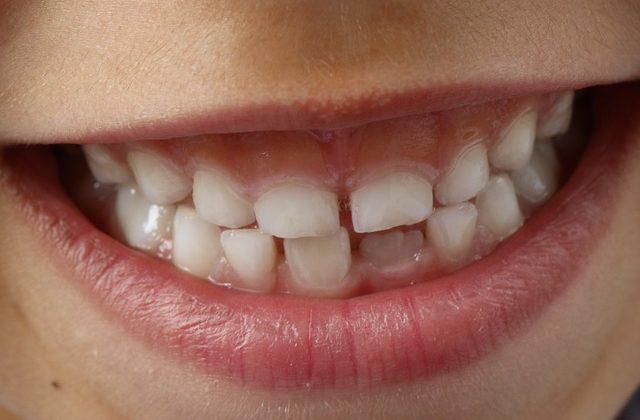como se cura la gingivitis