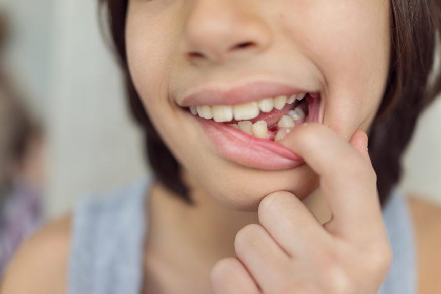 Avulsión dental, ¿qué es y cómo se trata?