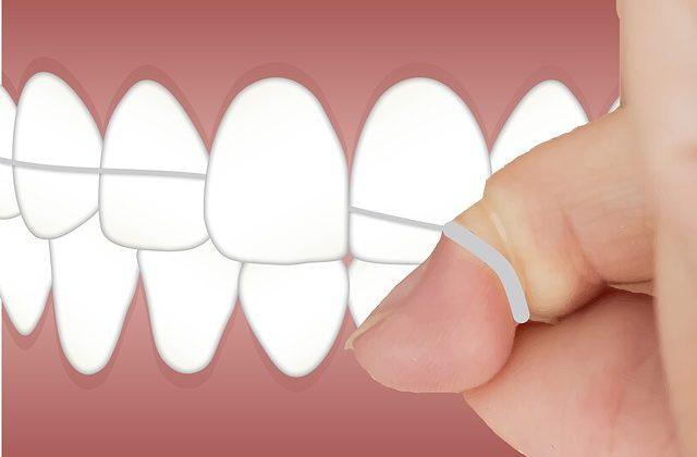 tecnica hilo dental