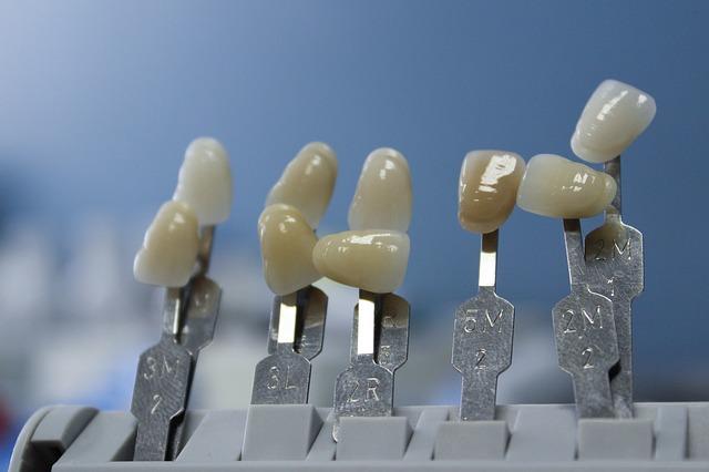 ¿Qué es la adhesión dental?