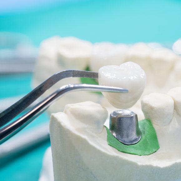 ¿Cuánto cuesta un implante dental?