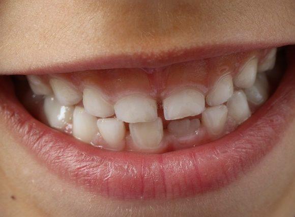 El nombre de los dientes y sus funciones