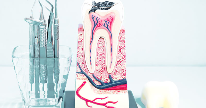 ¿Qué es un empaste dental y su proceso?