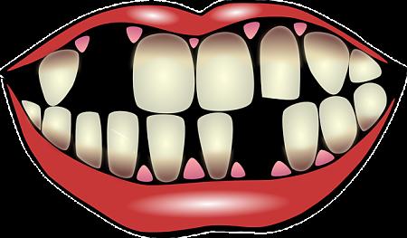 que funcion tiene los dientes_opt