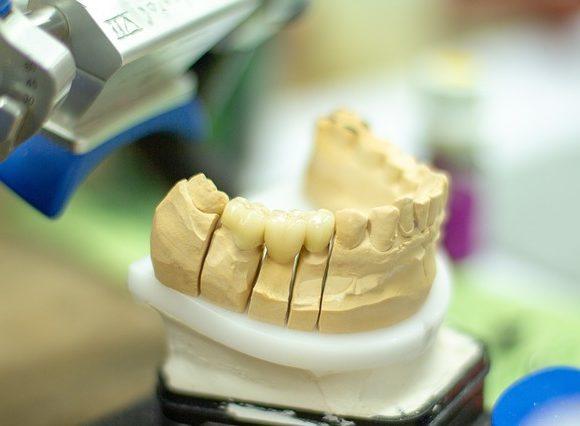 Reconstrucción dental. Tipos y cuidados