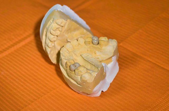 la reconstrucción dental es uno de los tratamientos más demandados para aquellas personas que buscan una solución a la estética y a carencias funcionales.