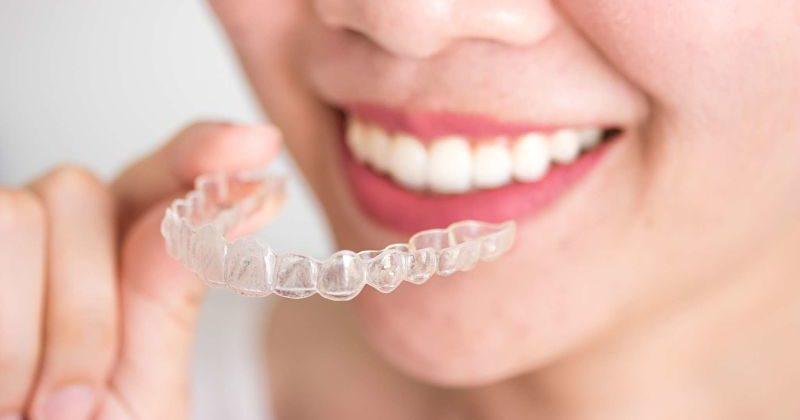Ortodoncia invisible, opinión del invisalign