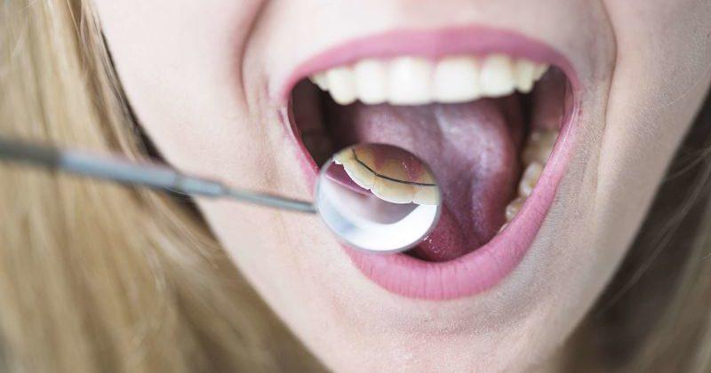 Todo lo que debes saber sobre la ortodoncia lingual