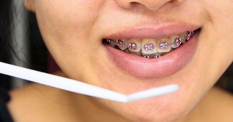 ortodoncia tradicional-min_opt