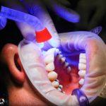 ¿Qué es el desbridamiento dental?