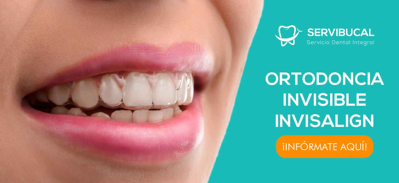 Ortodoncia Invisalign_Mesa de trabajo 1 copia 2