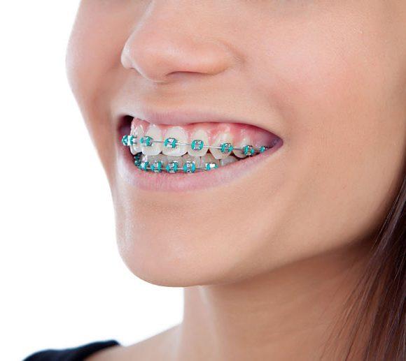 Cuidar los dientes en Navidad si tienes brackets