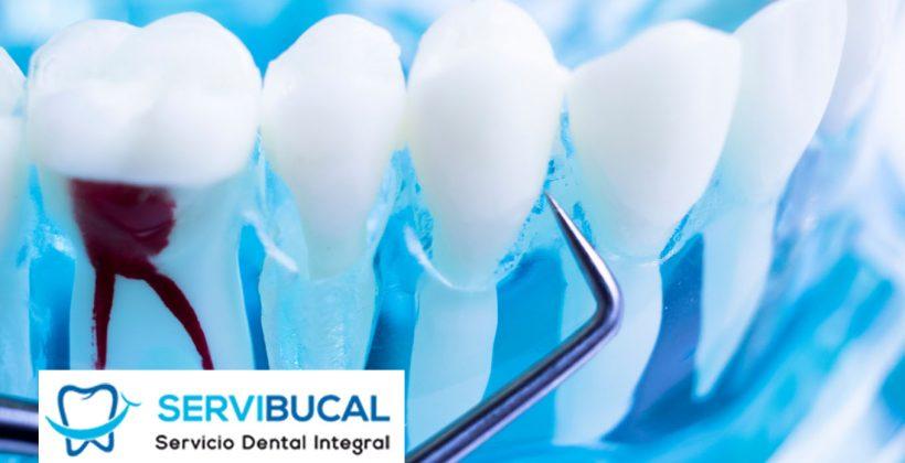Precio de endodoncia: infórmate sobre todo lo que tienes que saber