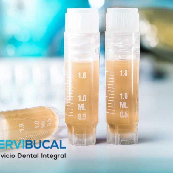 Bancos de dientes: fuente de células madre