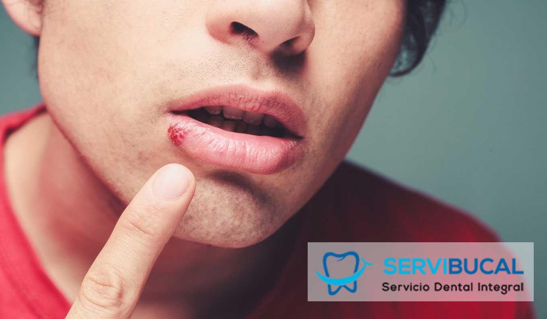Herpes labial: ¿qué es y cómo se trata?