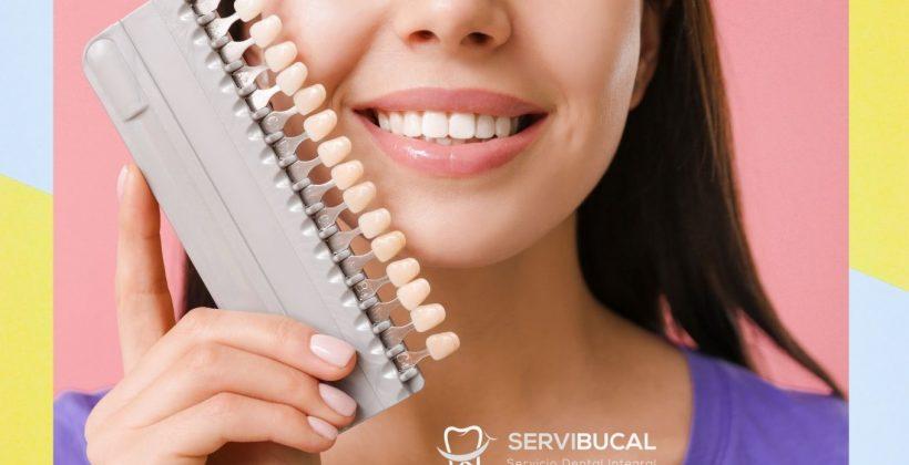 Precio de las carillas dentales y qué tipos existen